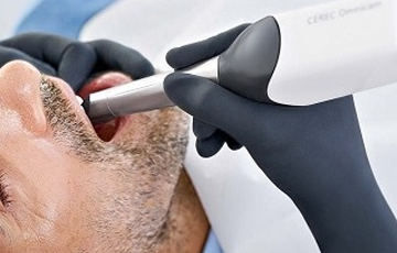 3D光学カメラで歯を撮影