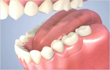 患者様のお口の状態に合った入れ歯をご提案