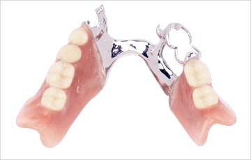 金属バネの入れ歯