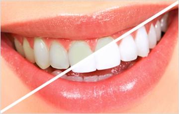 神経のない歯は白さのコントロールがむずかしい