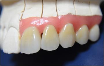 信頼できる歯科技工士との連携