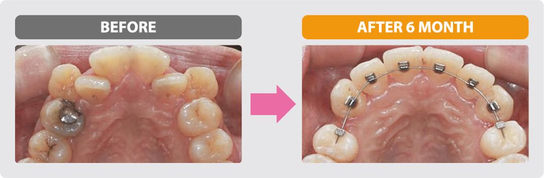 裏側部分矯正治療の症例4