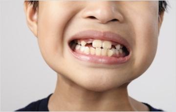 顎のスペースが狭いことによる問題