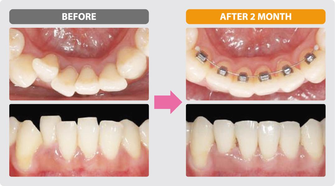 裏側部分矯正治療の症例2