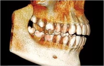 歯と神経の位置を正確に診断