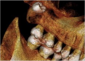 埋伏過剰歯の抜歯