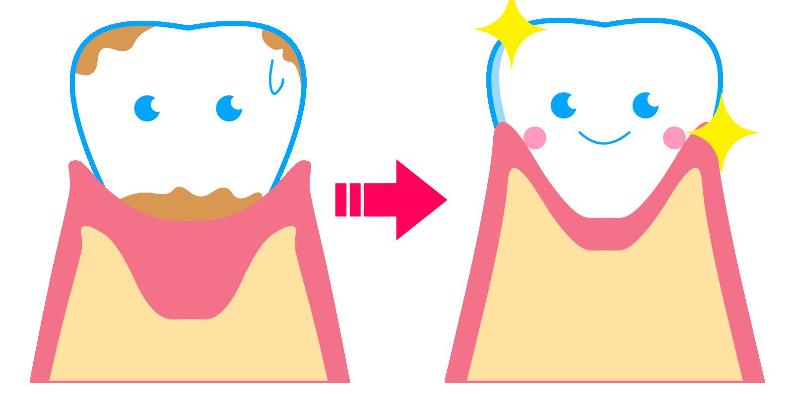 むし歯の原因となるプラークを取り除く