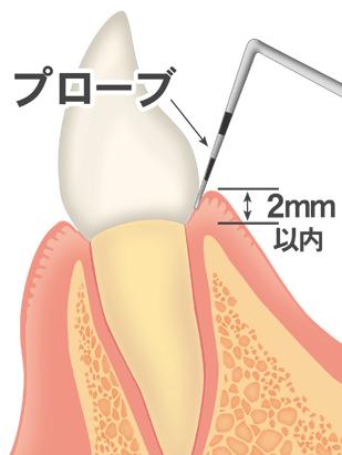 歯茎の検査
