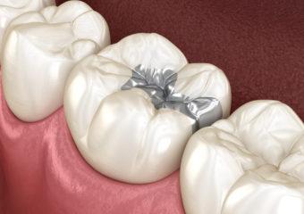 歯の詰め物