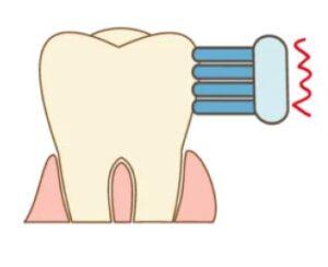 歯面の磨き方
